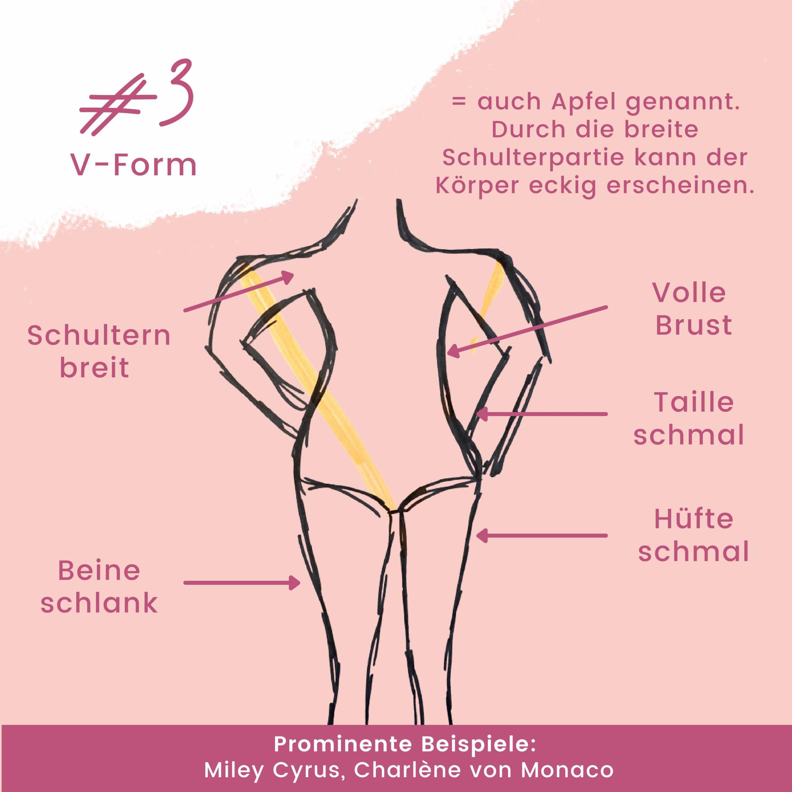 Hier sollte der Figurtyo V-Form näher beschrieben werden